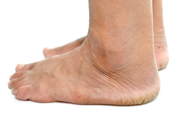 Diabetic foot conditions pain heel bottom of feet